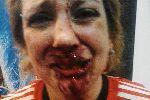 Chùm ảnh: Mê bóng đá, bà mẹ trẻ bị đánh đập dã man