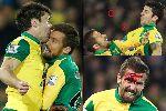 Chùm ảnh: Cầu thủ Norwich vỡ đầu gãy răng vì...